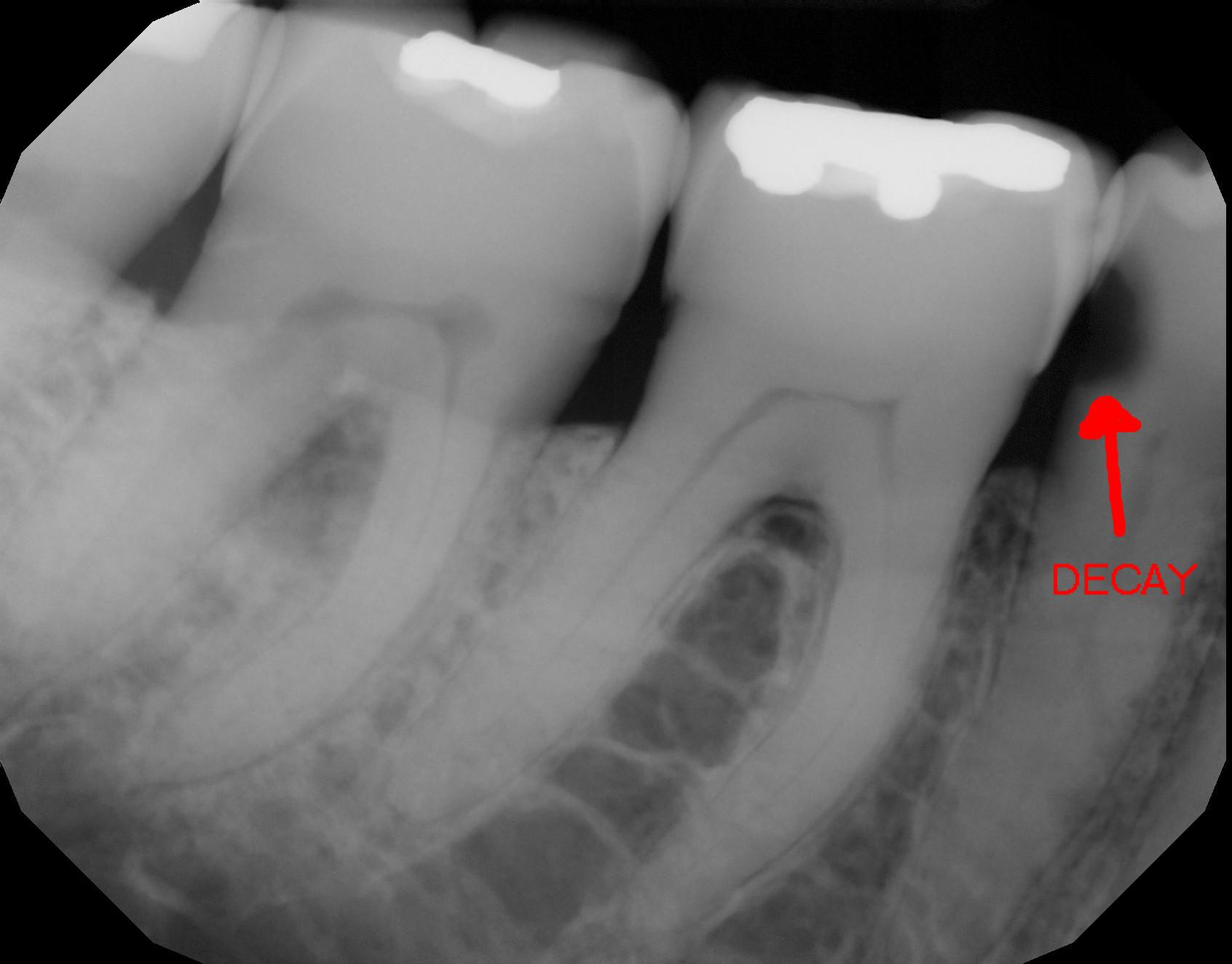 x-ray of a tooth showing decay.