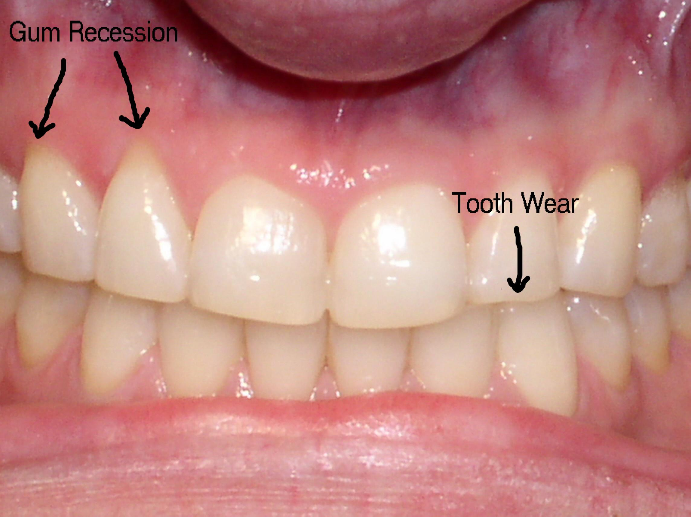 Photo of teeth and gums showing gum recession and tooth wear.